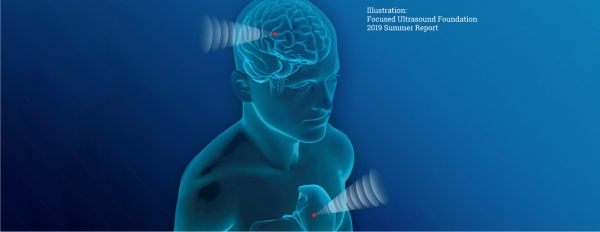 ultrasonic neuromodulation